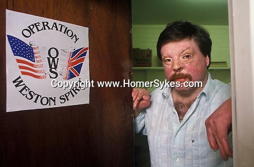 "Simon Weston Falklands war victim hero  celebrity, he set up ""Operation Weston Spirit"" Liverpool."
