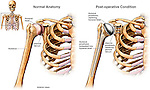 Right Total Shoulder Joint Replacement