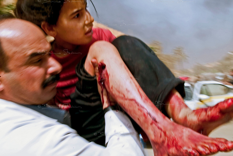 Baghdad, Iraq, April 5, 2003.Doctor Safa'a Al Hashemi rushes Naieb, 10, severely injured to the legs at Ubeidi by a US bomb, inside the Al Kindi hospital emergency ward. More than 70 US bombardment victims were admitted in less than 2 hours after a B52 carpet bombing on the Northern outskirts, about a fifth of these were military personel.