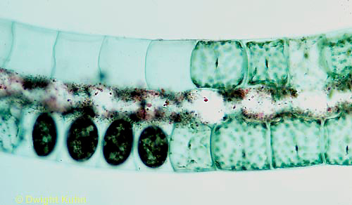PX08-039z  Spirogyra - green algae, early and late conjugation - Spirogyra spp. 100x  series: see PX08-036z, 038z, 039z, 040z, 050c