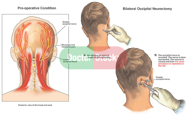 Headache Pain - Occipital Neuralgia with Surgical Neurectomy (Nerve Transection Surgery).