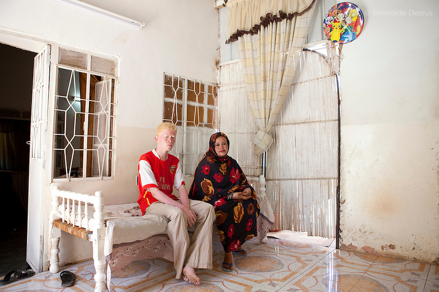 April 26, 2010  Khartoum, Sudan - Mohamed at home with his mother. Mohamed Magdy, is a 19 year old Sudanese albino. Mohamed is finishing school and works fixing computers. He lives in Khartoum with his mother and grand-father. His father left him when he was 40 days and never came back. He says people on the street think he is usual, others think he is an angel. Albinism is a genetic condition caused by a lack of melanin in the skin, eyes and hair. Photo credit: Benedicte Desrus
