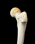 Upper end of left femur or upper long bone of the human leg from lateral side. The head of the femur inserts into the rounded acetabulum in the hip bone to form the hip joint, the neck and greater trochanter are visible.