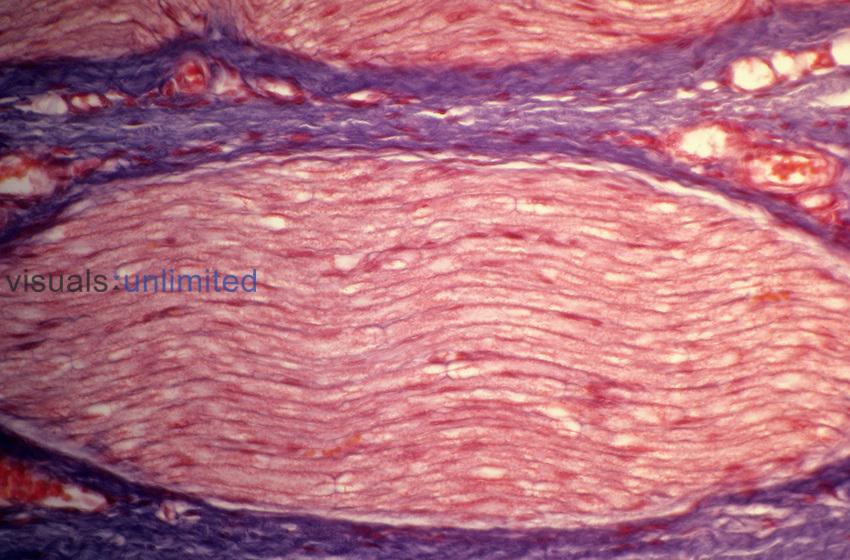 Nerve longitudinal section. LM