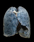 A smoker's damaged lungs.