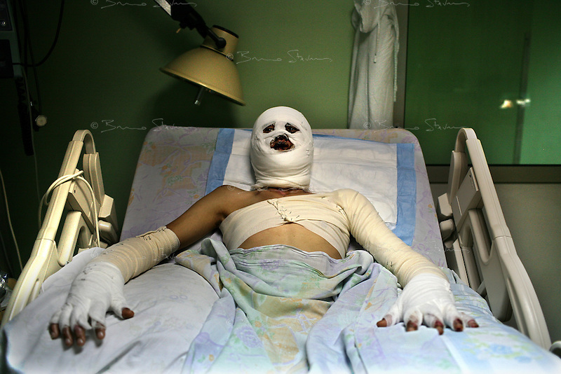 Beirut, Lebanon, Aug 10 2006.Hussein Rida, 18, a accounting student in Bent Jbeil has been very extensively burned all when an Israeli bomb destroyed his family home in Aytashab. Lebanese Hospital (Geitaoui), Department 'des grands brulés' (severe burns cases). This private hospital receives some of the most critical burn victims from the ongoing war, mostly civilians.