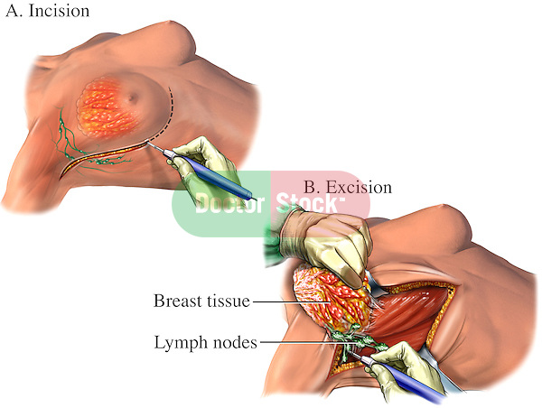 Breast Cancer - Mastectomy Surgery. This medical exhibit illustrates the surgical procedure of removing breast tissue and lymph nodes.