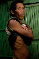 Romeo Roga, who sold his kidney and built a built a house with the money but it got blown apart in a typhoon. He sold the kidney for 90,000 pesos.  In the Basico area more than 3000 have sold their kidneys mostly to foreigners.<br /><br /><br />PHOTO BY RICHARD JONES