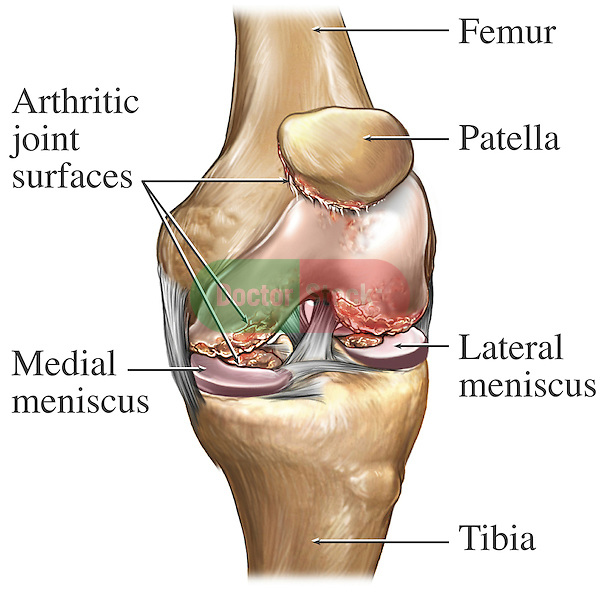 Knee Joint Osteoarthritis. This stock image features a front view of the knee joint with chondromalacia. Labeled and easily identified in the image are the following: Femur, patella, lateral meniscus, tibia, medial meniscus and arthritic joint surfaces.