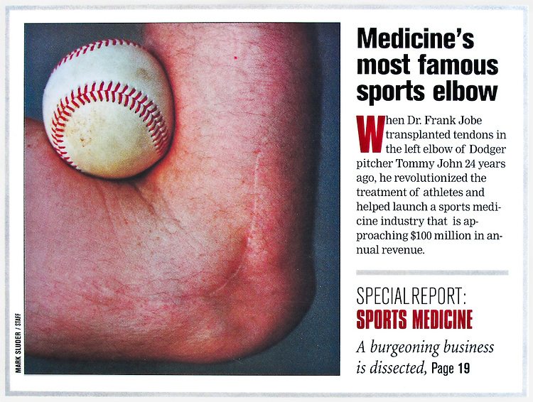 The Scar that Named A Surgery...<br />