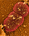 Staphylococcus aureus Bacteria, the cause of a wide variety of human infections, especially MRSA, as well as a common cause of food poisoning. SEM