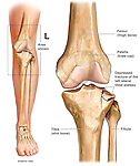 Fractured Knee - Tibial Plateau. This custom medical exhibit features an anterior overview of the left leg identifying the location of the fracture site at the knee. Next to it, a detailed anterior view isolates the knee bones revealing a depressed left lateral tibial plateau fracture. Bones of the knee are labeled and identified.