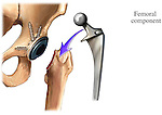 Hip Replacement Prosthesis - Femoral Component Prosthetic.