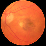 Age related macular degeneration with a choroidal neovascular membrane.