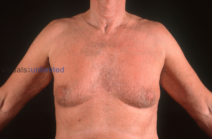 Lipodystrophy and Gynaecomastia in HIV positive patient