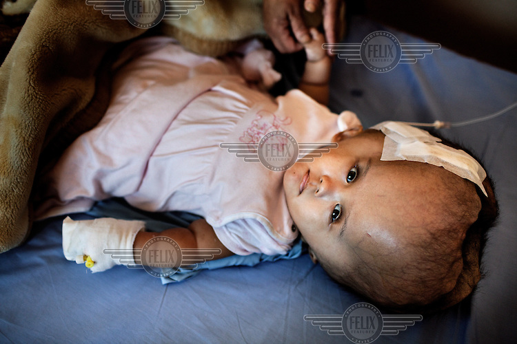 Victoria lies on a bed two days after she had her first surgery when 1.5 litres of fluid was drained from her head at the Annapurna Neurological Institute in Kathmandu. 19 month old Victoria (formerly named Ghane) was born with hydrocephalus and was left abandoned. Cecilie Hansen was so moved by the story of Ghane she read in a Danish newspaper that she decided to fly to Kathmandu to try to assist her and show her the love of another human being; Cecilie eventually became her legal guardian. Victoria died on November 19 2010 from heart failure.