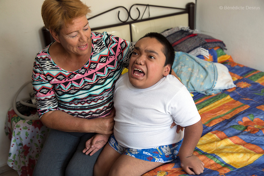 Joaquin Eduardo Torres Gil, 14, is pictured wth his mother Joaquina in his bedroom in Mexico City, Mexico, on February 16, 2017. Joaquin is the youngest of five siblings, three of whom have been diagnosed with Morquio syndrome. Morquio syndrome is a rare inherited birth defect that is estimated to occur in one of every 200,000 births. The disease may not be visible at birth; symptoms usually begin between ages 1 and 3. Morquio syndrome is a progressive disease, meaning symptoms get worse as a child grows. Photo credit: Bénédicte Desrus
