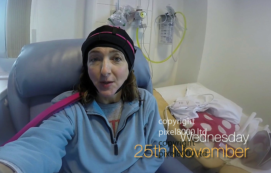 """Victoria Derbyshire breast cancer diary showed her journey with chemotherapy.<br /> <br /> She admitted that losing her hair was worse than having a mastectomy.<br /> <br /> pic shows:  wearing a """"cold cap"""" that freezes the scalp to reduce hair loss during chemo.  leaving clumps of ice on the head.<br /> <br /> <br /> <br /> Picture BBC supplied by Pixel8000  07917221968"""