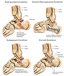 This custom medical exhibit reveals four comparative detailed views of the bones of the left foot, ankle and heel. Specifically shown are the following: 1. Initial intra-articular calcaneal (heel bone) fractures, 2. Placement of internal fixation plate and screws, 3. Onset of post-traumatic joint deterioration and arthritis, 4. Final condition after fusion of the tibio-calcaneal joint with bone graft and fixation screws.
