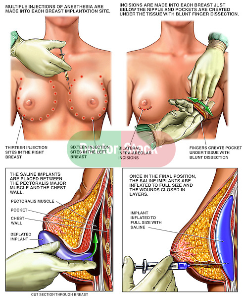 Bilateral Breast Augmentation (Breast Implants) Surgery.