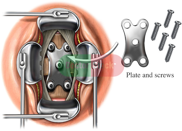 This stock illustration shows the placement of an Orion plate fixated with screws during a step form anterior spinal fusion surgery of the cervical spine.