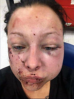 Pictured: Jenna Thomas after she was attacked, image taken from her open social media account.<br /> Re: A 22 year old mum says she is &ldquo;terrified to go home&rdquo; after she says she was strangled and severely beaten by her partner of four months.<br /> Jenna Louise Thomas, of Crindau, Newport, says the prolonged attack by her partner, Jamie Webber, on Sunday night was witnessed by her four-year-old son.<br /> She has been left with two black and bloodshot eyes and a swollen face.<br /> Miss Thomas, who is also known as Jenna Francis, says Jamie Webber is now on the run.<br /> Gwent Police confirmed that they are actively looking for him and have warned people not approach him.
