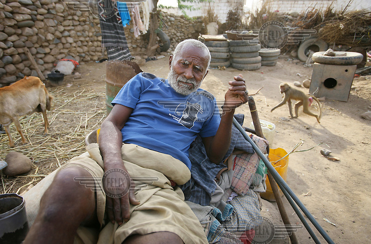 Abbas, aged 60, rests at home. His daughter was forced by her parents to get married three months ago at the age of 14. Due to the poverty in the region, many local men try to find a husband for their daughters as soon as they reach puberty.