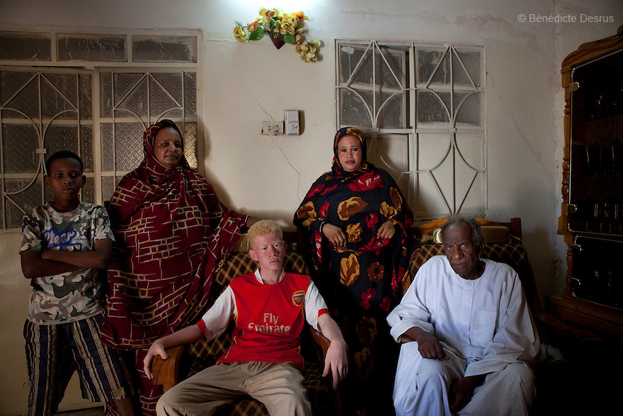 April 26, 2010  Khartoum, Sudan - Mohamed at home with his family. Mohamed Magdy, is a 19 year old Sudanese albino. Mohamed is finishing school and works fixing computers. He lives in Khartoum with his mother and grand-father. His father left him when he was 40 days and never came back. He says people on the street think he is usual, others think he is an angel. Albinism is a genetic condition caused by a lack of melanin in the skin, eyes and hair. Photo credit: Benedicte Desrus