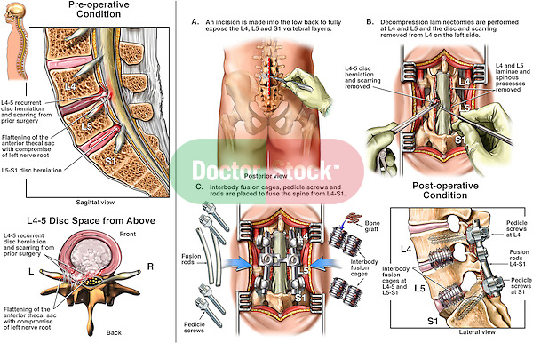 Back Surgery - L4-5 and L5-S1 Laminectomy, Discectomy (Diskectomy) and Spinal Fusion.