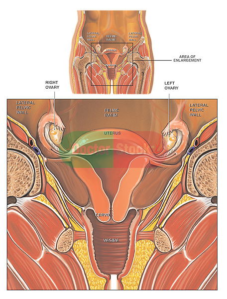 This medical exhibit displays an orientation and an enlarged detail anterior (front) cut-away view of the anatomy of the female reproductive system. Labeled anatomical structures include the lateral pelvic wall, pelvic basin, uterus, cervix, vagina, ovaries, and vagina.