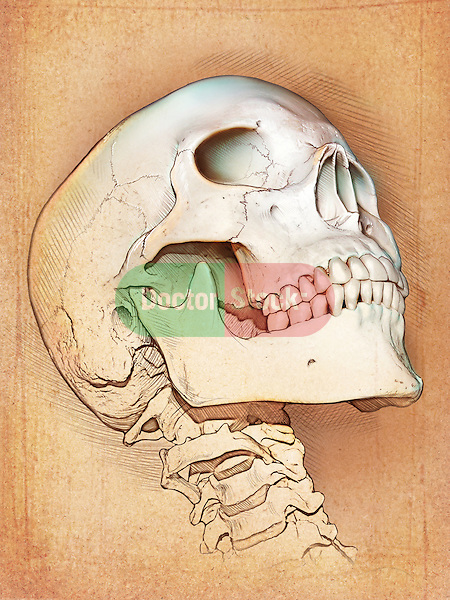 This medical illustration shows the skull and cervical vertebra from an inferior oblique angle. The skull is shown in extreme rotation to the left.