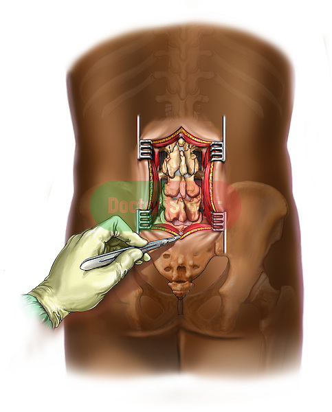 L3-5 lumbar incision & exposure. The spine shows signgs of facet arthrosis.