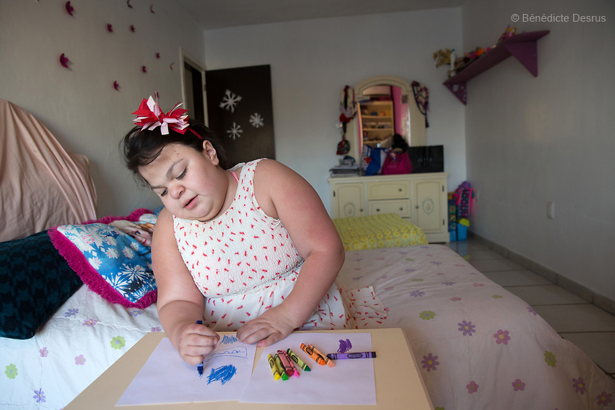 "Ana Ximena Navarro is pictured drawing at her home in Guadalajara, Mexico on February 22, 2017. Ximena was diagnosed as an infant with Hurler syndrome. Hurler syndrome is the most severe form of mucopolysaccharidosis type 1 (MPS1), a rare lysosomal storage disease, characterized by skeletal abnormalities, cognitive impairment, heart disease, respiratory problems, enlarged liver and spleen, characteristic facies and reduced life expectancy. Ximena was being given enzyme replacement therapy (ERT) when she was 19 months old, and she was suddenly able to eat and sleep. She is now 12, and has normal hormonal development for her age, although some mental delay, according to her father. ""Without the treatment, she would have died from all the complications — untreated, children have a very bad quality of life and typically die before they are seven"", her father says. Photo credit: Bénédicte Desrus"