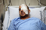 A Palestinian man, Mohammed Abu Tayeh, lies on the bed at a hospital after he was wounded during clashes with Israeli security forces following last Friday prayers in the East Jerusalem neighbourhood of Ras Al Amoud, in Jerusalem's Old City on July 24, 2017 as Palestinians protest against Israel's newly-installed security measures at the entrance to the al-Aqsa mosque compound. Photo by Amir Abed Rabbo