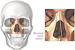 This medical exhibit pictures a deviated nasal septum from an anterior (front) view. An orientation view is included to clarify where the nasal septum is located within the skull. A label identifies the deviated nasal septum.