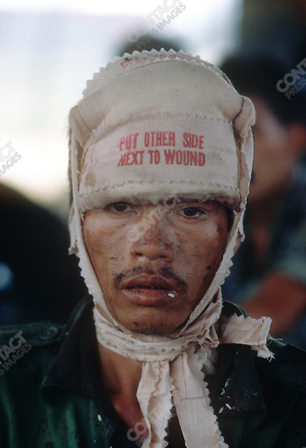 Wounded South Vietnamese soldier, South Vietnam 1972