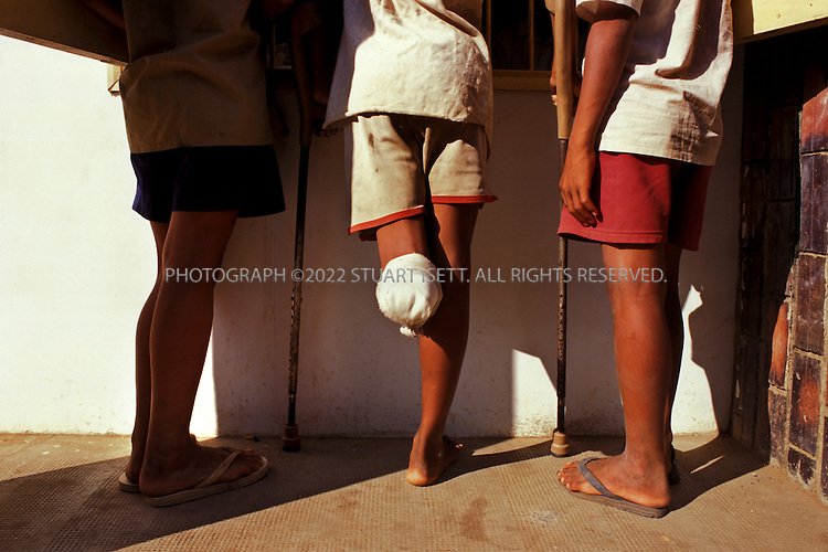 Battambang, Cambodia..A young boy and landmine victim stands around Battambang Hospital with 2 friends...©2003 Stuart Isett All rights reserved