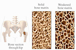 Biomedical illustration depicting osteoporosis using three illustrations. The first graphic shows an orientation to the bone section though the hip from a coronal (cut-way) view. The second image pictures solid bone matrix, and the third shows weakened bone matrix.