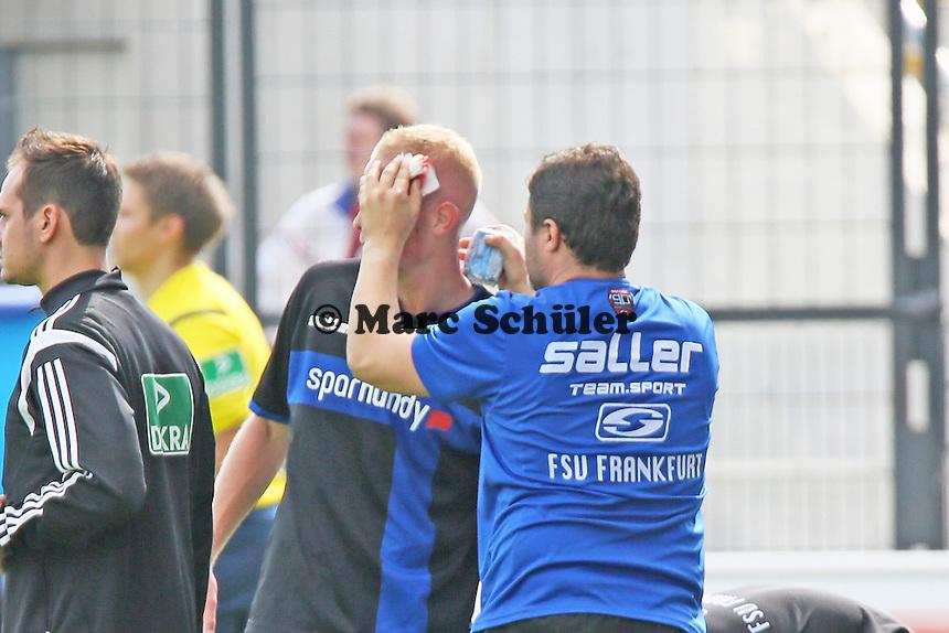 Tom Beugelsdijk (FSV) wird mit blutender Platzwunde behandelt - FSV Frankfurt vs. VfL Bochum, Frankfurter Volksbank Stadion