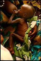 Garissa, NE Kenya, March 2006.Garissa regional hospital, Therapeutic Feeding Centre.  Adiu Mohammed, 9 months old, suffers from severe malnutrition, he is one of more than 4 millions people affected in the region by the worst drought in man's memory.