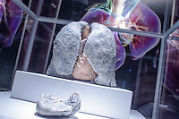 A siliconized lung attacked by cancer is seen on display on the Human Body exhibition in Budapest, Hungary on March 26, 2012. ATTILA VOLGYI