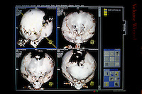 CT scans of Victoria's head taken at the Annapurna Neurological Institute in Kathmandu. Since birth the growing amount of water inside her skull has been putting the cranium under pressure from within. It has expanded and is now larger than the head of a grown man. The bone structure has not grown at the same speed. As a result, the top of her head is only covered by skin. 19 month old Victoria (formerly named Ghane) was born with hydrocephalus and was left abandoned. Cecilie Hansen was so moved by the story of Ghane she read in a Danish newspaper that she decided to fly to Kathmandu to try to assist her and show her the love of another human being; Cecilie eventually became her legal guardian. Victoria died on November 19 2010 from heart failure.