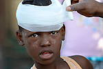 Nine-year old Jouly Seide ran out of her family's house during Haiti's devastating January 12 earthquake, then remembered her one-year old sister still inside. She ran back in, only to have the house collapse on her. She and her sister were rescued later the same day, but she received head wounds that are being treated here on January 24 in a camp for homeless families in the Belair section of Port-au-Prince.