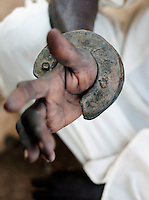 A fighting braclet on the wrist of a Nuba tribesman. Bracelet fighting is now banned in Sudan. Nyaro village, Kordofan region, Sudan
