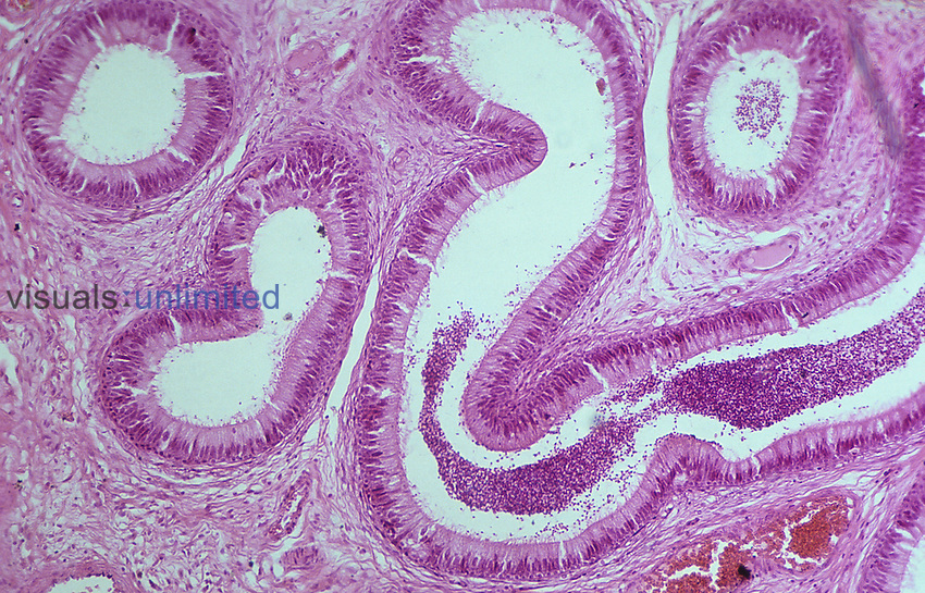 Cross section of the human epididymis. LM X80.