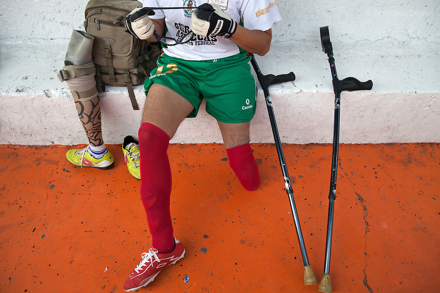 """A player from Guerreros Aztecas, removes his prosthetic leg before training with his team in Mexico City, Mexico on July 24, 2014. Guerreros Aztecas (""""Aztec Warriors"""") is Mexico City's first amputee football team. Founded in July 2013 by five volunteers, they now have 23 players, seven of them have made the national team's shortlist to represent Mexico at this year's Amputee Soccer World Cup in Sinaloathis December.The team trains twice a week for weekend games with other teams. No prostheses are used, so field players missing a lower extremity can only play using crutches. Those missing an upper extremity play as goalkeepers. The teams play six per side with unlimited substitutions. Each half lasts 25 minutes. The causes of the amputations range from accidents to medical interventions – none of which have stopped the Guerreros Aztecas from continuing to play. The players' age, backgrounds and professions cover the full sweep of Mexican society, and they are united by the will to keep their heads held high in a country where discrimination against the disabled remains widespread.(Photo byBénédicte Desrus)"""