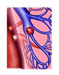 embolus in left pulmonary artery, pulmonary infarction
