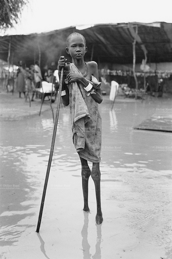 Sudan. Southern part. Bahr El Ghazal. Marial Lou. Dinka tribe area. A lean child in a feeding center ran by the ngo (non governmental organisation) MSF Switzerland ( Médecins Sans Frontières. Doctors without Borders). The feeding center is flooded by the heavy rains.  © 1998 Didier Ruef