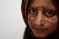 One night in 1993, Safia Bibi is slepping, wrapped in her mother's arms. A man sneaked inside the house and throw acid on her mother. Safia will be also burn. She was 8 month old-2009