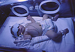 Two day old term baby on Neonatal unit being drip fed in an incubator having phototherapy treatment for jaundice.  MR